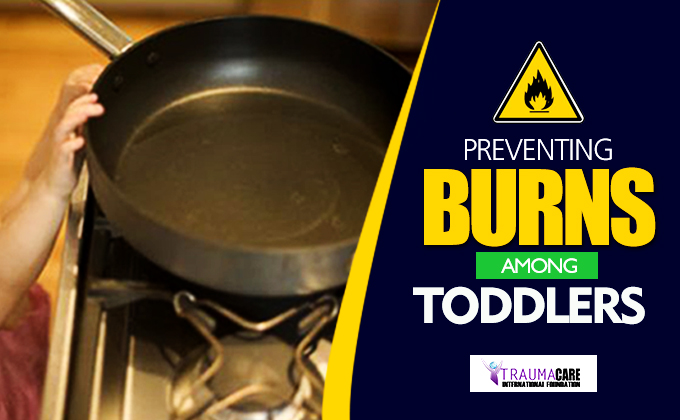 Preventing Burns in Toddlers